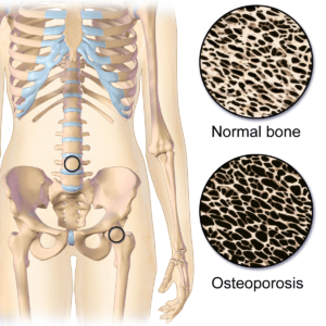 Osteoporosis Locations.png